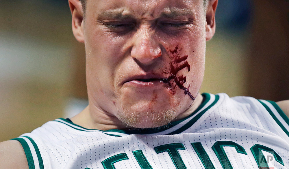 Boston Celtics forward Jonas Jerebko reacts after being hit by Houston Rockets guard James Harden during the fourth quarter of an NBA basketball game in Boston, Wednesday, Jan. 25, 2017. Harden was charged with a flagrant foul. The Celtics defeated the Rockets 120-109. (AP Photo/Charles Krupa)