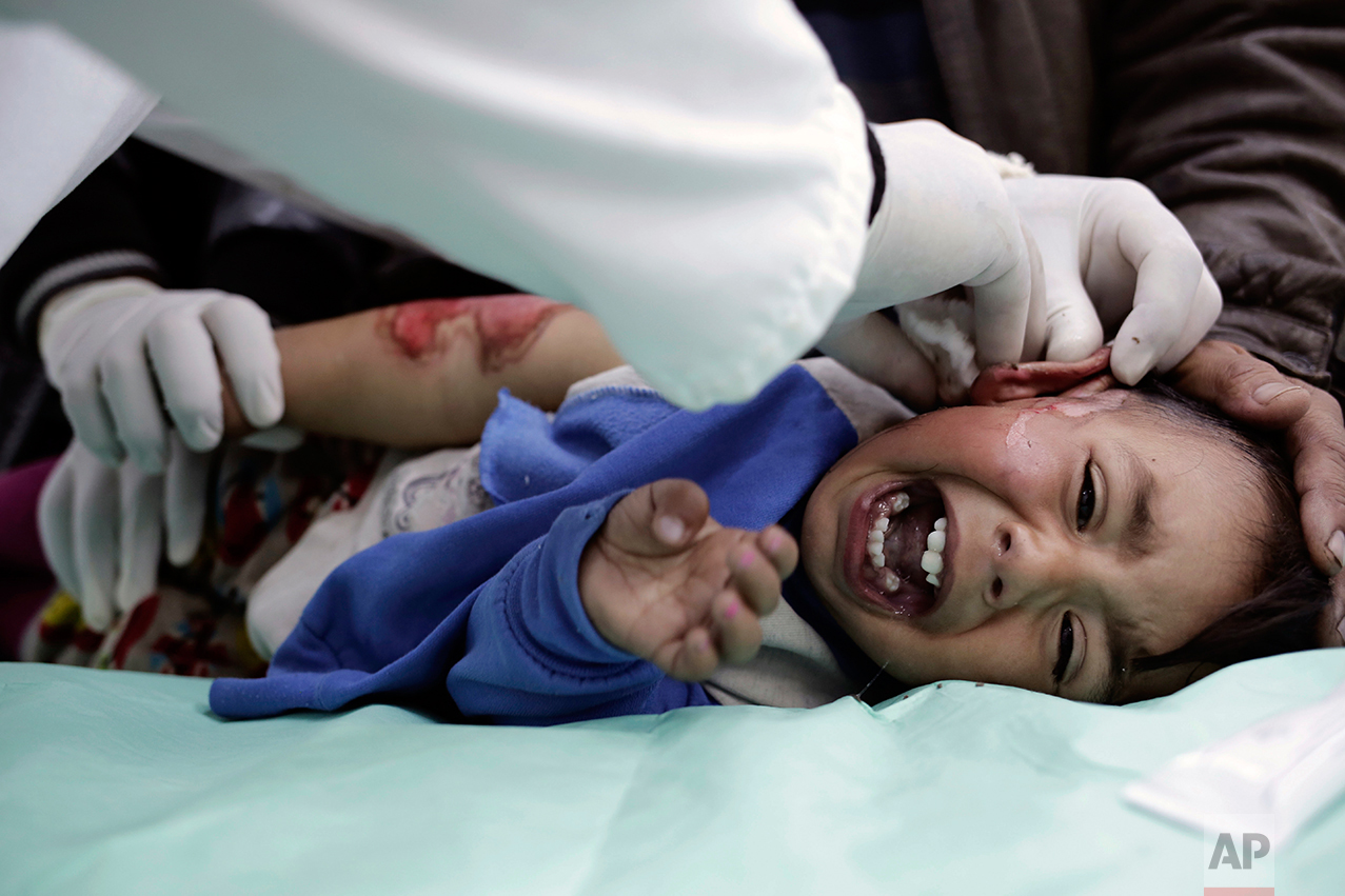 A child with severe burns, from scalding water, cries out in pain as a medic cleans his wounds at a hospital in the Zahra neighborhood of Mosul, Iraq, Tuesday, Feb. 14, 2017. Doctors in the small clinic in eastern Mosul say that since the operation to retake the city began months ago, they've only received intermittent deliveries of supplies. (AP Photo/Bram Janssen)