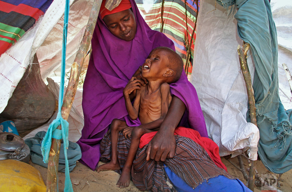 Recently displaced mother Sahra Muse, 32, comforts her malnourished child, Ibrahim Ali, 7, in their makeshift shelter at a camp in the Garasbaley area on the outskirts of Mogadishu, Somalia on Tuesday, March 28, 2017. Drought-stricken families facing a hunger crisis are on the move, trying to reach international aid agencies that are unable to distribute food in areas under the control of al-Shabab, Somalia's homegrown Islamic extremist rebels affiliated with al-Qaida. (AP Photo/Farah Abdi Warsameh)