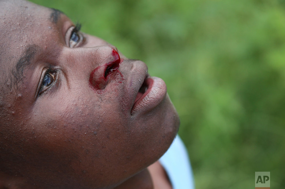 In this Feb. 12, 2017 photo, a young boy nose bleeds after taking a few punches in a boxing ring in Chitungwiza, ZImbabwe. (AP Photo/Tsvangirayi Mukwazhi)