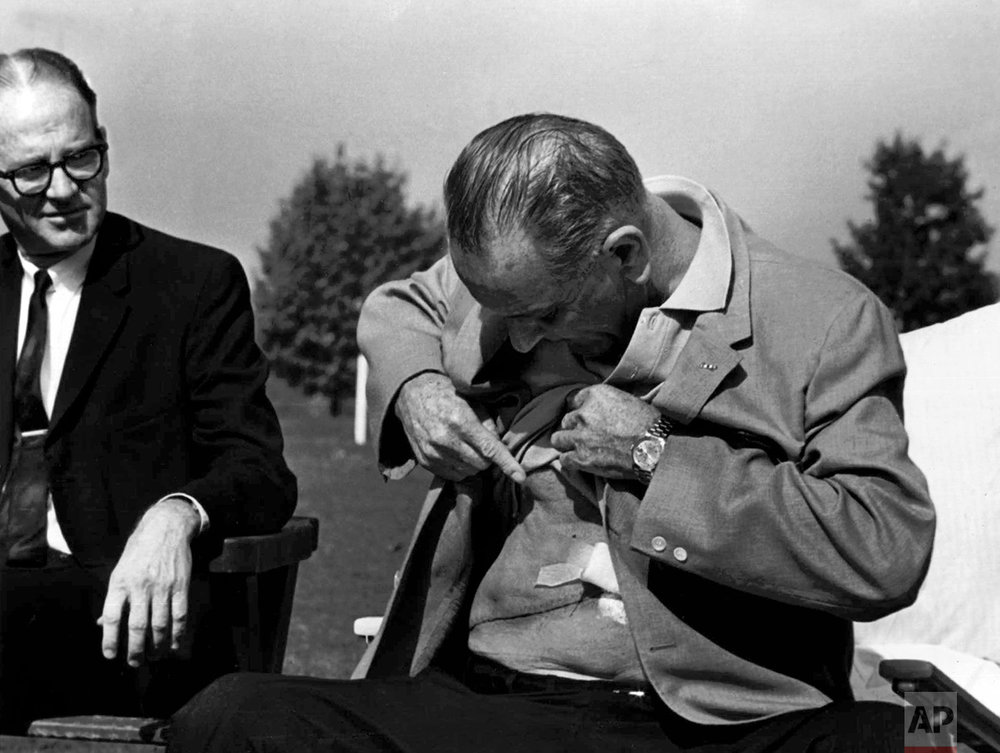 U.S. President Lyndon Baines Johnson displays the incision from his gall bladder surgery and kidney stone removal at a news conference at Bethesda Naval Hospital in Washington Oct. 20, 1965. (AP Photo/Charles Tasnadi)