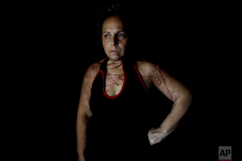 In this Feb. 8, 2017 file photo, Karina Abregu poses for a portrait in Buenos Aires, Argentina. Abregu was set on fire by her husband, burning 55 percent of her body, and today she continues medical treatment. Abregu suffered years of mistreatment and although she reported 14 incidents over the course of 14 years, police did nothing until two months after the attack. She said the police ignored her calls for help. Police have been stationed outside her home for the past two years because she fears her ex-husband's friends will harm her. (AP Photo/Natacha Pisarenko)