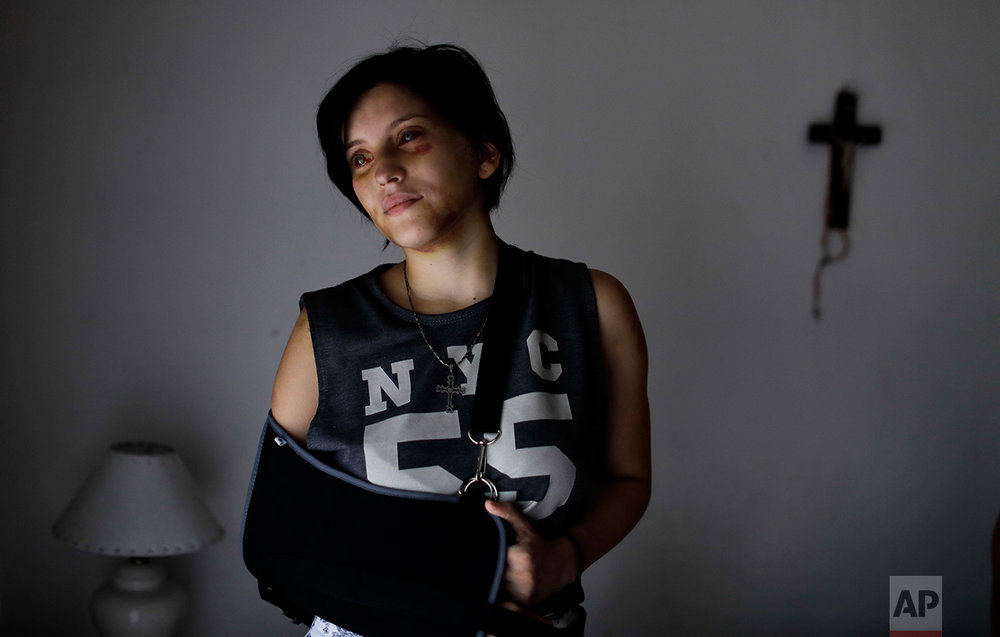 In this Feb. 8, 2017 photo, Belen Torres poses for a portrait in Buenos Aires, Argentina. Torres was beaten by her boss, just a few days after starting her first job in the capital doing administrative paperwork for an anesthesiologist, to help her family pay the bills. The doctor asked her to get high and tried to have sex with her. After he beat her, she was able to escape and run outside, where an unknown man called 911. (AP Photo/Natacha Pisarenko)