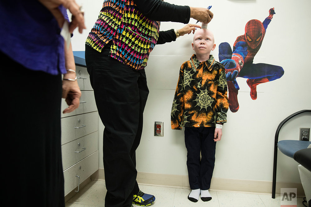 Baraka Cosmas height is measured at Shriners Hospital for Children in Philadelphia, Monday, March 27, 2017. The children from Tanzania with the hereditary condition of albinism are in the U.S. to receive free surgery and prostheses at the hospital. The children were attacked and dismembered in the belief that their body parts will bring wealth. (AP Photo/Matt Rourke)