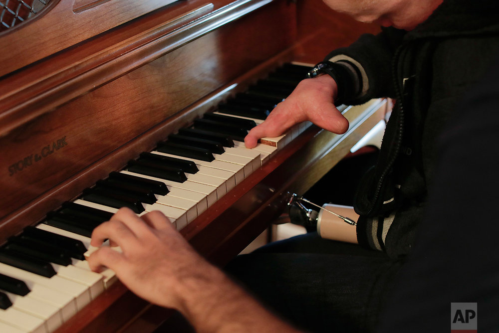 Emmanuel Festo plays notes on the piano alongside Ahmed Shareef, while visiting a friend's home, Sunday, June 4, 2017, in Staten Island, N.Y. Festo, an albino from Tanzania, lost his left arm and fingers when he was attacked at home by those who believe the limbs of albinos hold magical powers. (AP Photo/Julie Jacobson)