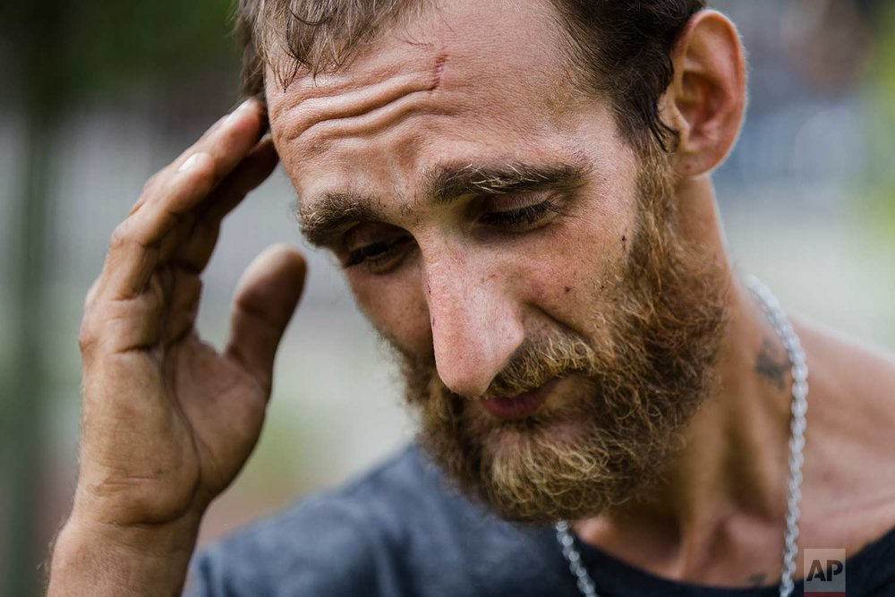 In this Monday, July 24, 2017 photo, Steven Kemp, who is addicted to heroin and is homeless, speaks with The Associated Press after meeting with a Philly Restart representative for help to obtain an identification card in Philadelphia. (AP Photo/Matt Rourke)