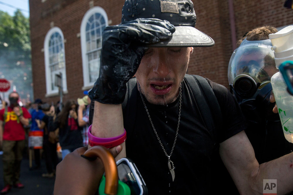 A counter-protester reacts after getting an eye wash after being sprayed with a substance during a white nationalist rally on Saturday Aug. 12, 2017, in Charlottesville, Va. (Shaban Athuman /Richmond Times-Dispatch via AP)