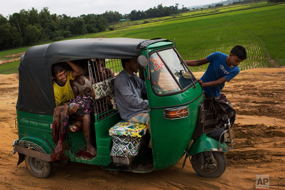 EDS NOTE GRAPHIC CONTENT: An injured elderly woman and her relatives rush to a hospital on an autorickshaw, near the border town of Kutupalong, Bangladesh, Monday, Sept. 4, 2017. The Rohingya woman encountered a landmine that blew off the right leg while trying to cross into Bangladesh. (AP Photo/Bernat Armangue)