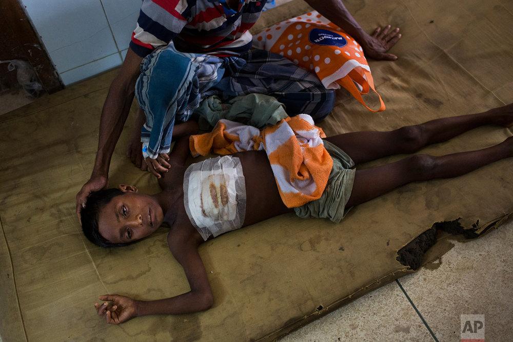 Shoabib, 7, lies on the floor next to his father at Sadar Hospital in Cox's Bazar, Bangladesh, Sunday, Sept. 10, 2017. (AP Photo/Bernat Armangue)