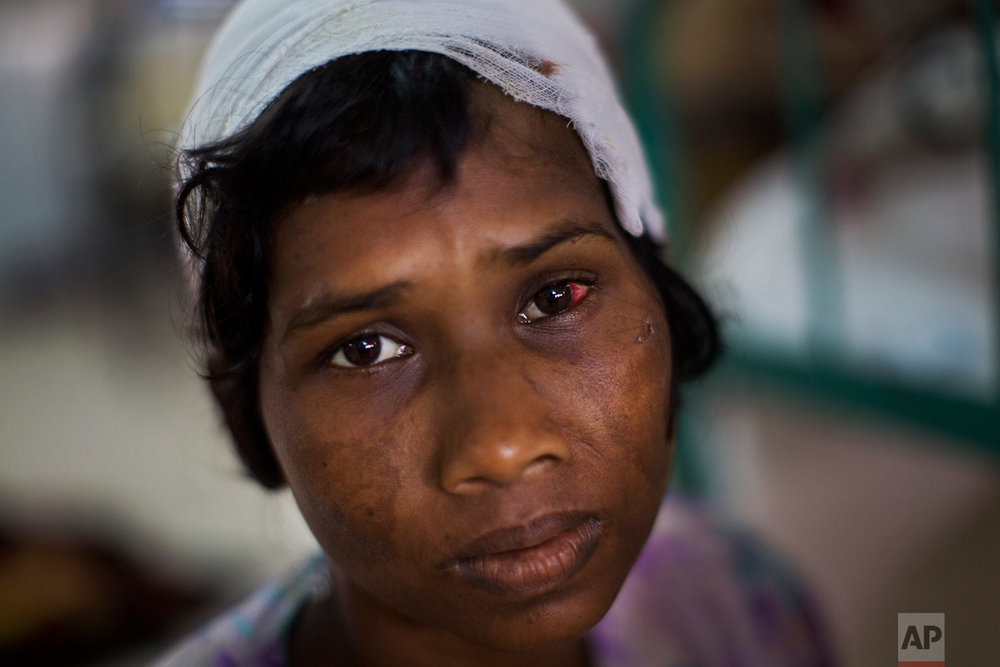 Rohingya woman Dildar Begum gets treatment at Sadar Hospital in Cox's Bazar, Bangladesh, Sunday, Sept. 10, 2017. Begum and her daughter Noor Kalima, not pictured, got stabbed by Myanmar soldiers and her husband was killed. (AP Photo/Bernat Armangue)