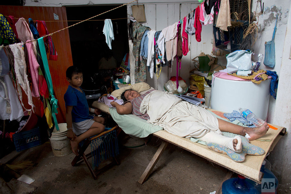 Ana Luisa Espinosa Robledo, 55, recovers from a broken leg sustained when her house collapsed on her during Thursday's magnitude 8.1 earthquake, in Juchitan, Oaxaca state, Mexico, Monday, Sept. 11, 2017. (AP Photo/Rebecca Blackwell)