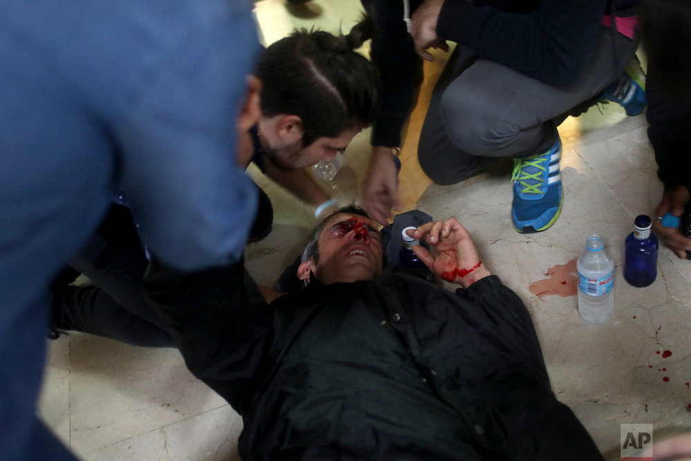 A protester is attended after being hit by a rubber bullet shot by Spanish National Police near the Ramon Llull school assigned to be a polling station by the Catalan government in Barcelona, Spain, early Sunday, 1 Oct. 2017. (AP Photo/Manu Brabo)