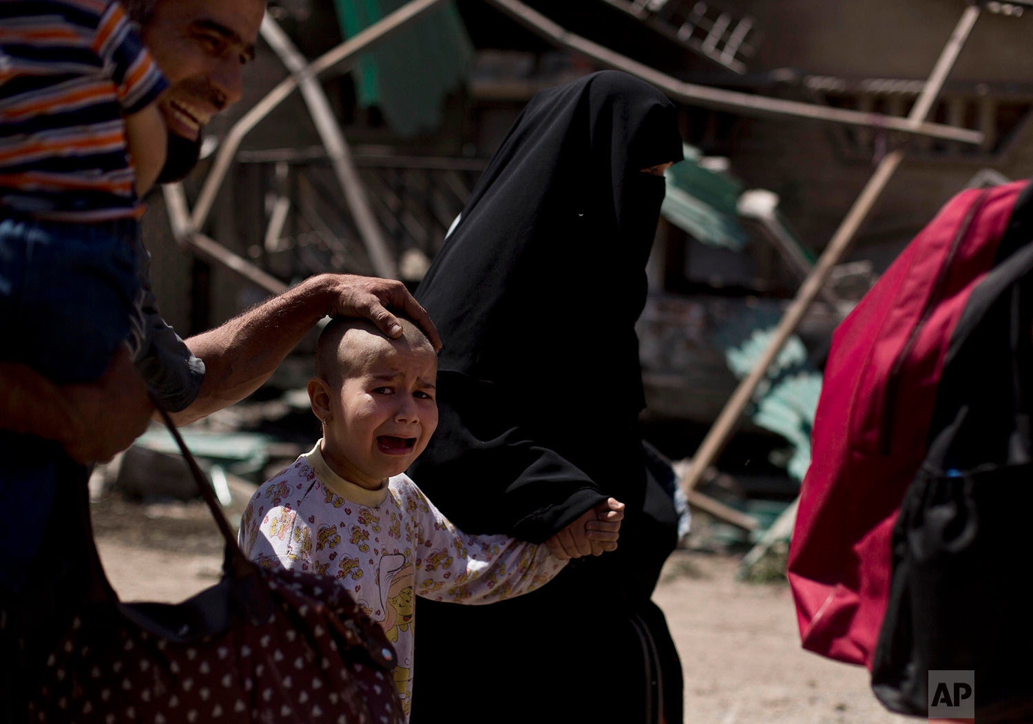 A girl with a shaved head and her father cry as the family flees the al-Rifai neighborhood while Iraqi special forces battle Islamic State militants in western Mosul, Iraq, Wednesday, May 17, 2017.(AP Photo/Maya Alleruzzo)