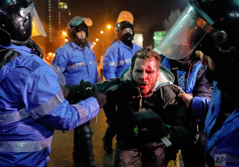 In this Thursday, Feb. 2, 2017 photo, Romanian riot police detain a man, face covered in blood, after minor clashes erupted during a protest in Bucharest, Romania. Brief clashes broke out between protesters and police in Romania's capital, as tens of thousands of people protested for the second night a government decision to decriminalise official misconduct. (AP Photo/Vadim Ghirda)