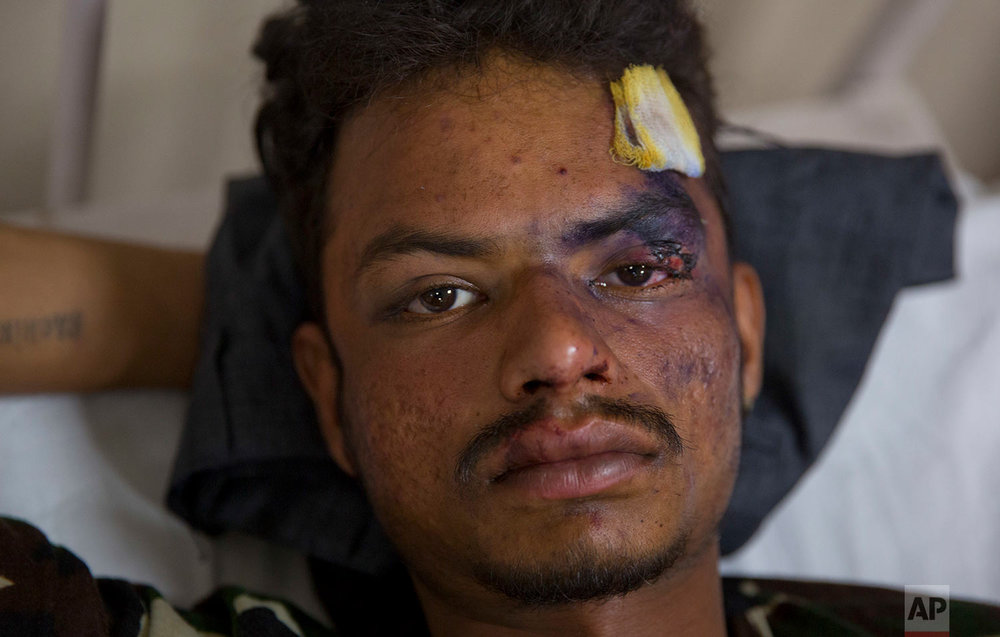 Indian Dalit man Sachin kumar, 21, who was attacked by a group of people while returning from a rally, recovers at a government hospital in Meerut, about 65 kilometers from New Delhi, India, Wednesday, May 24, 2017. Police rushed forces to a north Indian town on Wednesday and arrested dozens of people to stop clashes that erupted when upper caste Hindus fired on Dalits belonging to the lowest rung of India's caste hierarchy. Police officer Aditya Mishra said the Dalits were attacked while they were returning from a rally led by their leader Mayawati in Saharanpur, a town in Uttar Pradesh state. (AP Photo/Manish Swarup)