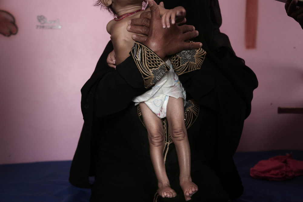 Copy of Yemen Starvation