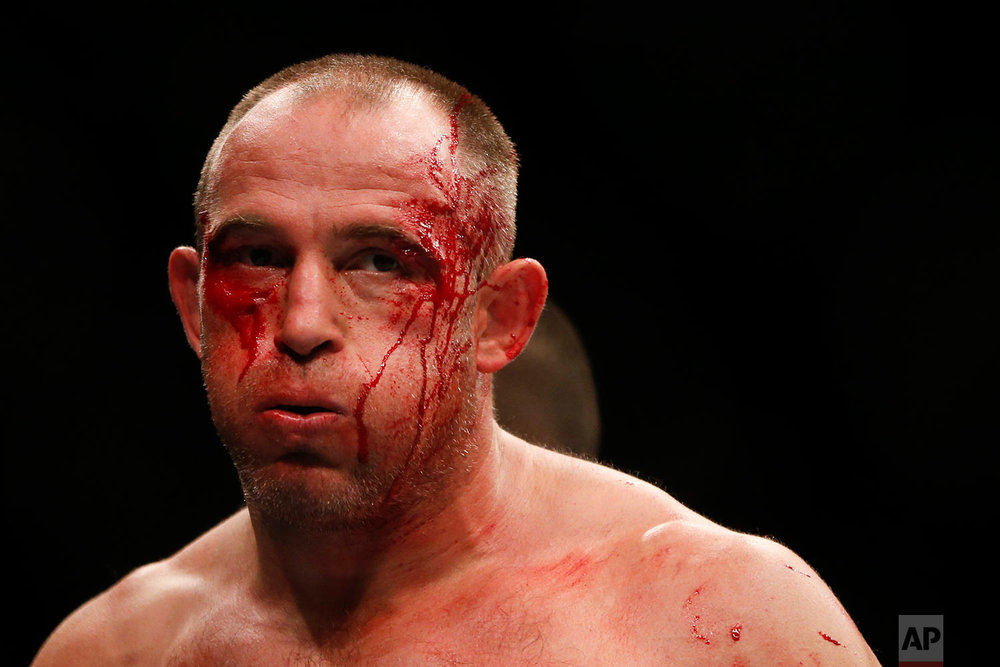 Blood trickles down the face of Russia's Aleksei Oleinik during his UFC heavyweight mixed martial arts bout with Brazil's Junior Albini in Rio de Janeiro, Brazil, Saturday, May 12, 2018. (AP Photo/Leo Correa)