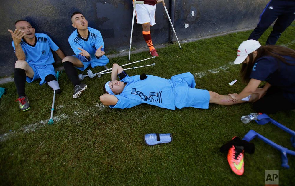 In this June 9, 2018 photo, players from the Manta Club rest as one gets physical therapy attention at the half of their match against Fuerzas Armadas during a national soccer tournament for players with amputated limbs, in Quito, Ecuador. Some of the players are hoping to be selected for a national team that will compete in the 15th World Amputee Football Federation's World Cup taking place later this year in Guadalajara, Mexico. (AP Photo/Dolores Ochoa)