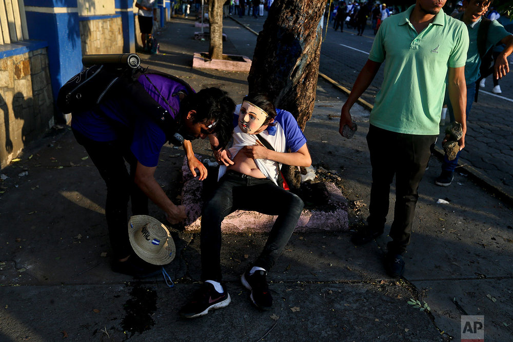 In this May 30, 2018 photo, a masked protester takes stock of his injury after  clashes with  police and government supporters in Managua, Nicaragua, during a march commemorating mother's day, and in honor mothers' children who have died during ongoing anti-government street protests. (AP Photo/Esteban Felix)
