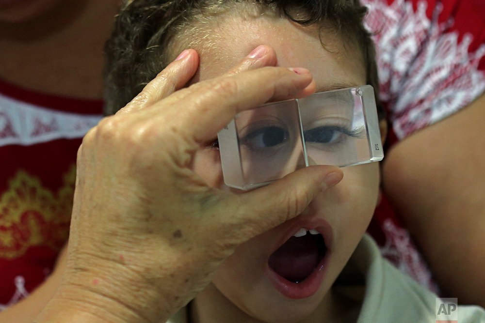 In this May 3, 2018 photo published in June, 2-year-old Luiz Mauricio, who was born with the Zika-caused microcephaly birth defect, takes an ophthalmology exam at the Altino Ventura Institute in Recife, Brazil. (AP Photo/Eraldo Peres)