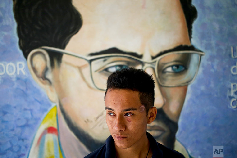In this June 8, 2018 photo, John Cerna poses for a portrait by a mural of Carlos Fonseca, national hero and founder of the Sandinista National Liberation Front, at the Autonomous University of Nicaragua where students are barricading themselves on campus for protection from government security forces and armed supporters in Managua, Nicaragua. Cerna, a student from the National Engineering University, has a scar on his left temple where a bullet grazed him. (AP Photo/Esteban Felix)