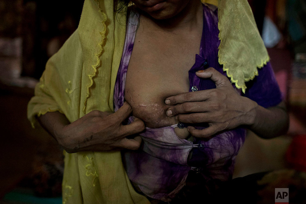 """""""M"""" shows off teeth marks on her right breast from being bitten by soldiers while being raped, as she sits in her shelter in Kutupalong refugee camp in Bangladesh,June 26, 2018. (AP Photo/Wong Maye-E)"""