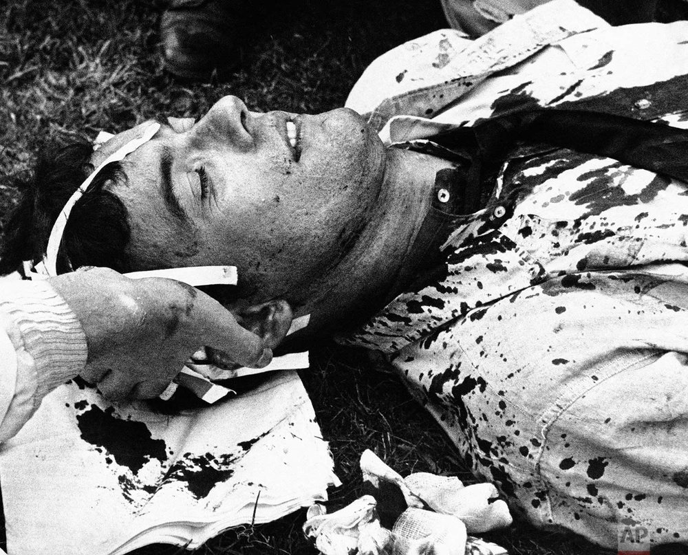 An unidentified man receives first aid in Chicago's Grant Park during a confrontation between police and antiwar demonstrators, August 28, 1968. (AP Photo)