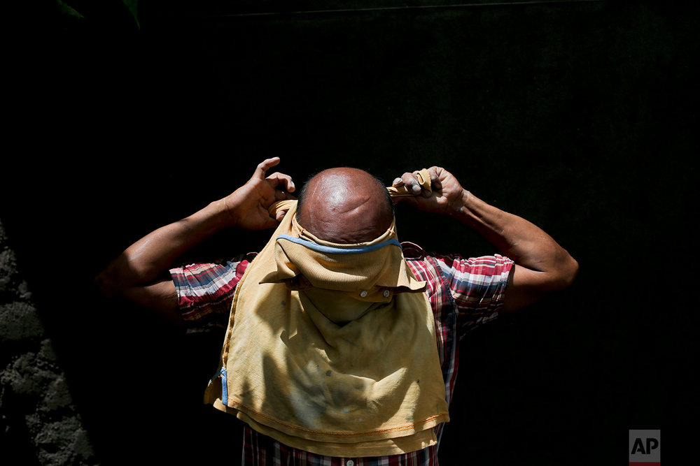 In this July 1, 2018 photo, a man who prefers not to give his name for fear or gang member retaliation, wraps a shirt around his forehead to protect his head and neck as he works as a construction laborer in the department of Yojoa, Honduras, where he worked to build a home to save money for his family to migrate again to the U.S. On April 22, 2001, the man was shot by gang members 14 times when he failed to come up with extortion money but survived after being left for dead. His son and 8-year-old daughter left on a northern-bound bus, but in Mexico he and his wife came across a security roadblock, and lacking proper documents, were sent back to Honduras.(AP Photo/Esteban Felix)