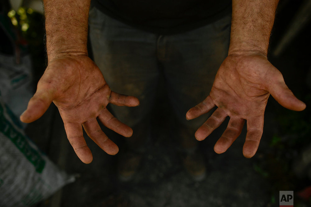 In this Wednesday, Aug. 29, 2018 photo, Miguel Lander, 56, shows his hands as he works making traditional charcoal in Viloria, northern Spain.  (AP Photo/Alvaro Barrientos)