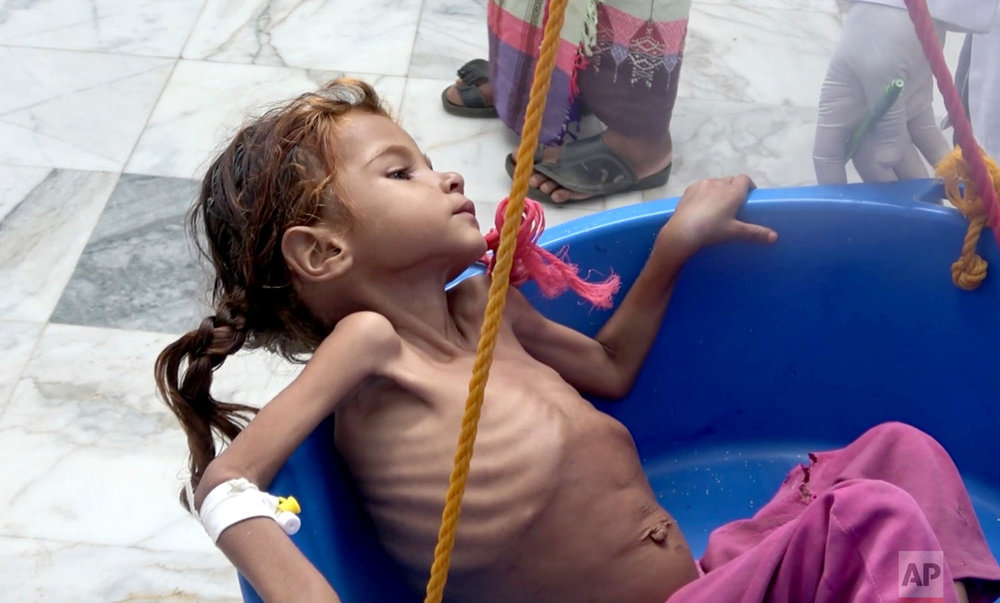 In this image made from video, a severely malnourished girl is weighed at the Aslam Health Center, Aug. 25, 2018, in Hajjah, Yemen. (AP Photo/Hammadi Issa)
