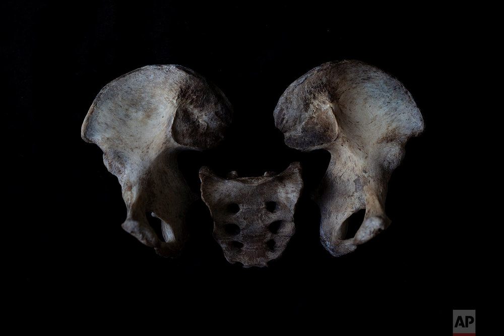 In this Monday Oct. 1, 2018 photo, the pelvis  of a black unidentified adult male is seen. The remains were found in August 2018 in a field in Johannesburg and brought to a mortuary for identification purposes. Once a demographic profile is estimated it will go to the victim identification center in the South African police department to create a facial reconstruction. (AP Photo/Bram Janssen)