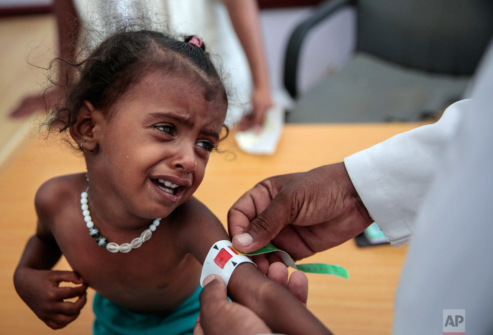 A doctor measures the arm of malnourished girl at the Aslam Health Center, Hajjah, Yemen. (AP Photo/Hani Mohammed)