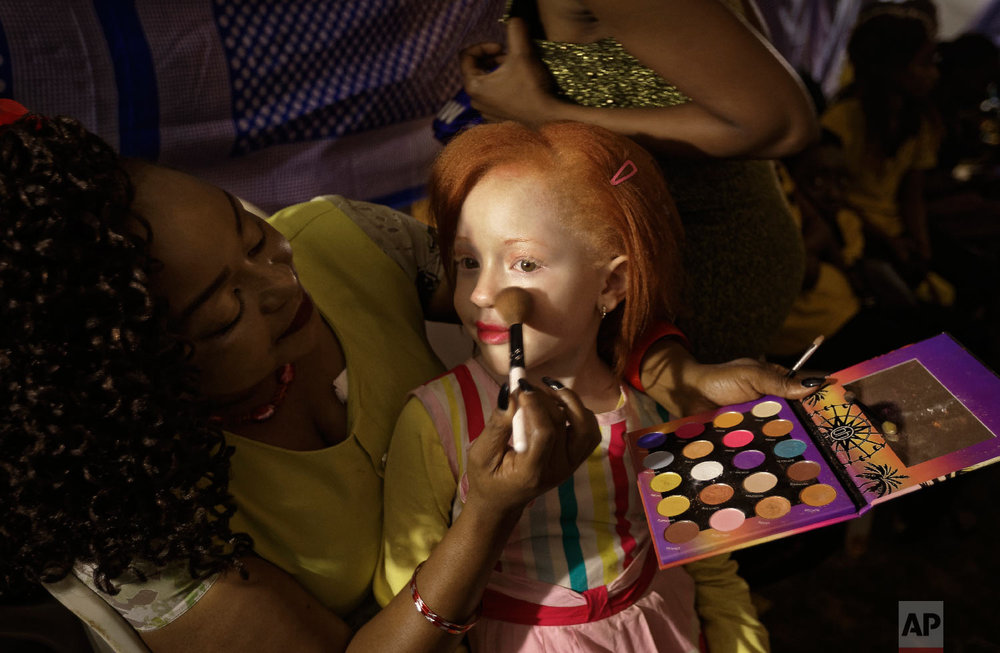 Elsie Lynn, 6, has her makeup done a she waits for the start of the Mr. & Miss Albinism East Africa contest, organized by the Albinism Society of Kenya, in Nairobi, Kenya, Nov. 30, 2018. (AP Photo/Ben Curtis)