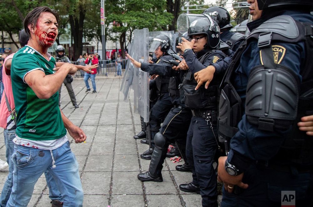 In this June 17, 2018 photo, a bloodied soccer fan argues with officers after being injured by the police when soccer fans celebrated Mexico's Russia World Cup game win over Germany, in Mexico City. (AP Photo/Anthony Vazquez)