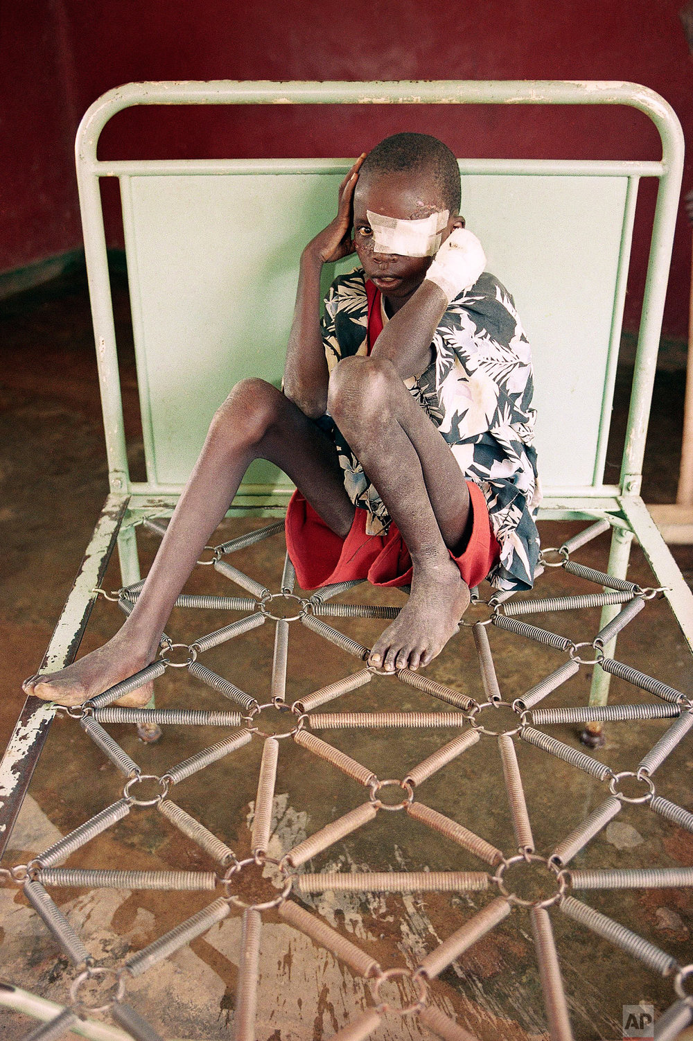 Reverien Rurangua, who was wounded in a machete attack and evacuated by the Red Cross from Kabgayi, near Kigali, sits on a bed with no mattress at a hospital in Nyanza, some 35 miles south of the capital Kigali, in Rwanda, on June 4, 1994. (AP Photo/Jean-Marc Bouju)