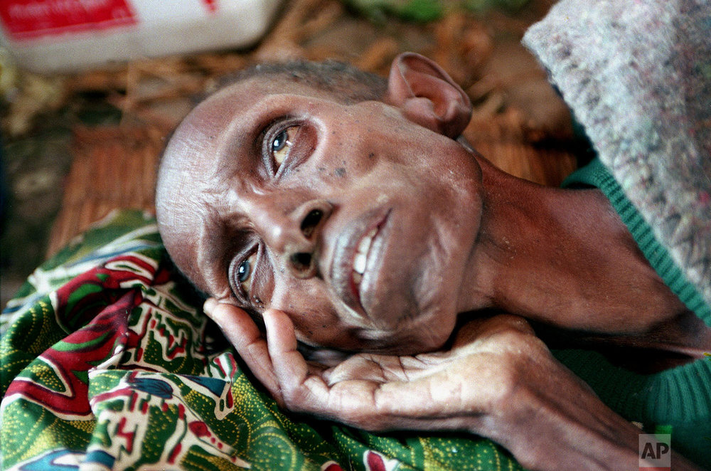 A man lies starving at a makeshift health clinic in Ruhango, about 30 miles southwest of Kigali, Rwanda, Monday, June 6, 1994. (AP Photo/Jean-Marc Bouju)