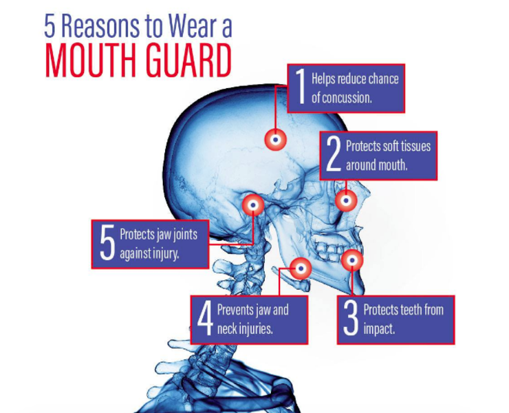 Olana Dental Mouthguards Sports Broadbeach Melbourne Kingscliff 5 Reasons to Wear a Mouth Guard.png
