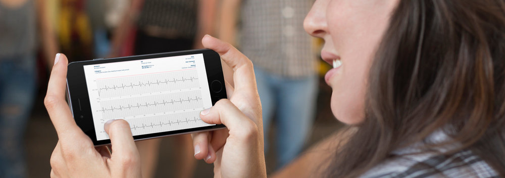 Coala App EKG