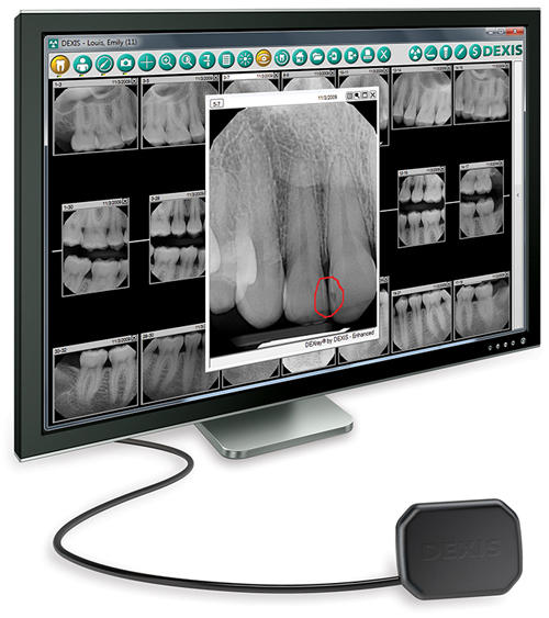 Digital Radiography enables dentists to provide better patient care and decrease environmental impact.