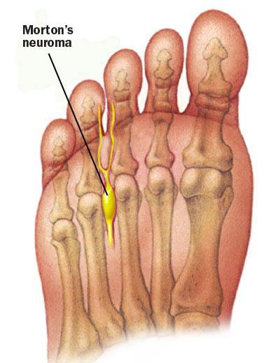 Foot Doctor Katy | Podiatrist Katy Texas