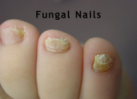 fungalnails (1).jpg