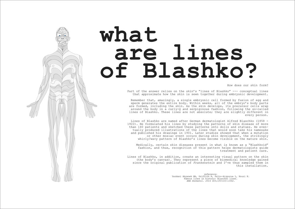 lines of blashko