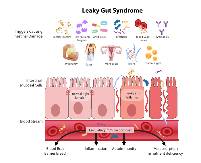 click image to make bigger - this is your gut when leaky