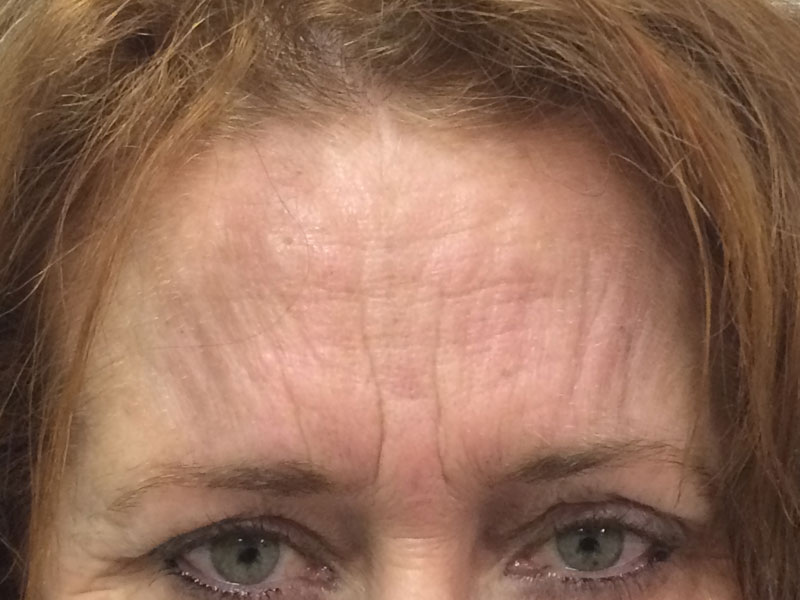 Frown before Wrinkle Relaxer treatment