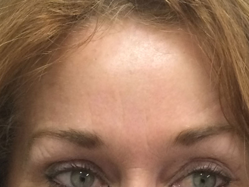 Forehead after   Wrinkle Relaxer treatment