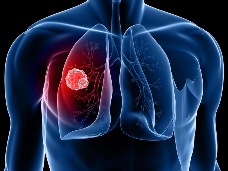 dt_140501_lung_cancer_800x600.jpg