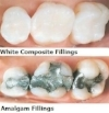 White-Fillings.jpg