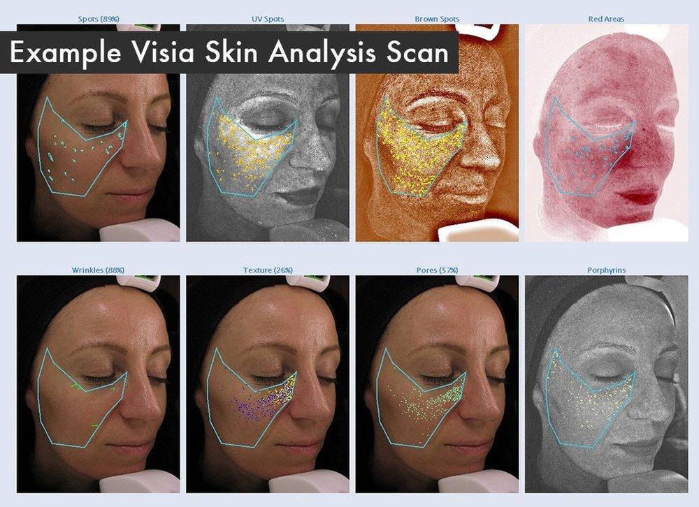 skin-scan_1024x1024.jpg