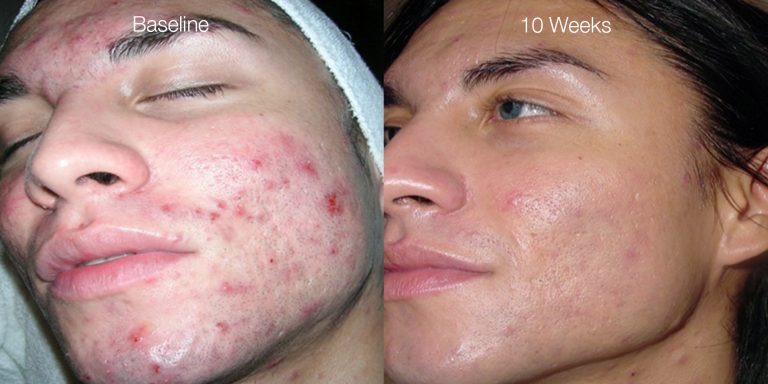 Severe acne results after 6 treatments.