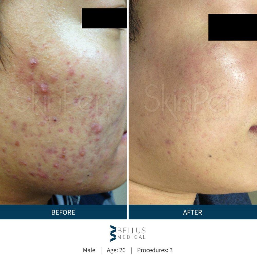 b-a-acne2.jpg